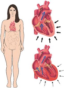 Gebelikte Kalp Hastalığı