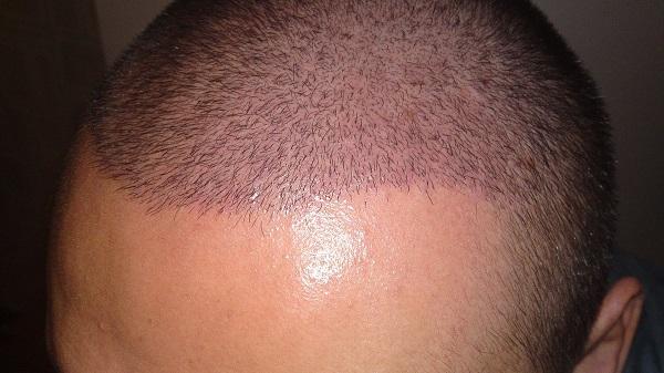 saç ekimi süresi