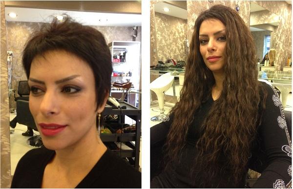 Saç kaynağı öncesi ve sonrası
