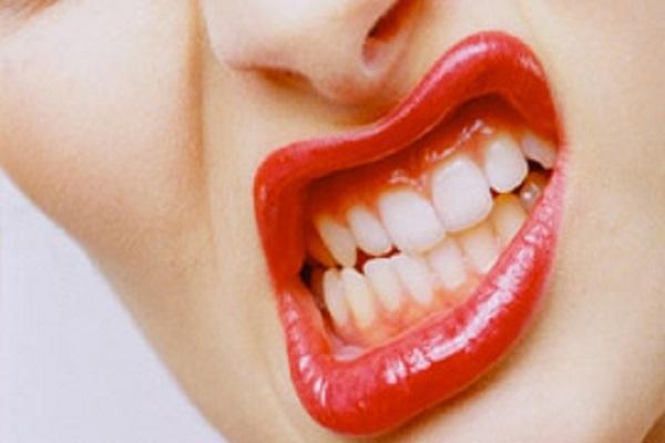 diş sıkma alışkanlığı